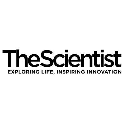 What Sensory Receptors Do Outside of Sense Organs